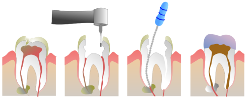 Watch an up-close video of how root canal therapy is done.