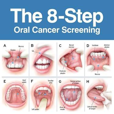 oral_cancer_check